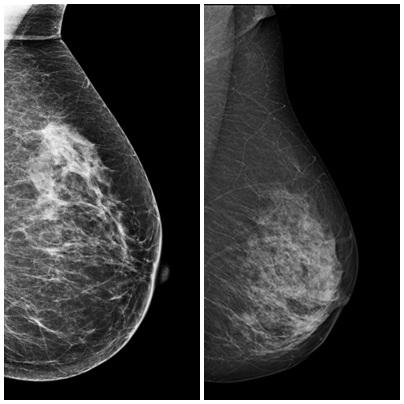 mammography_roentgen