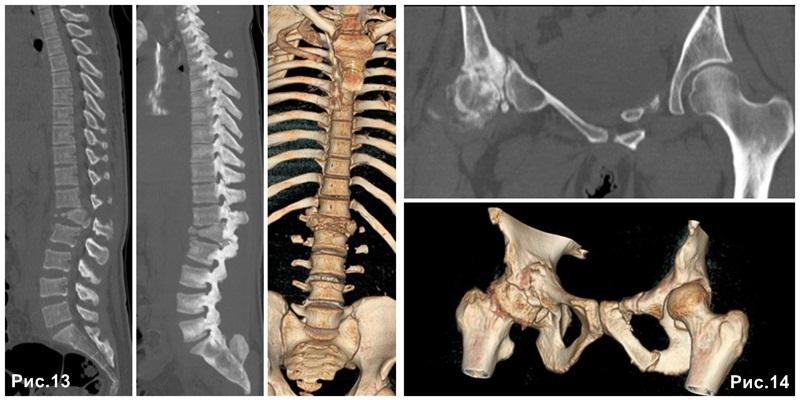 spine_bones_CT