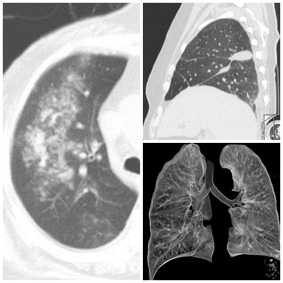lung_tomography_CT