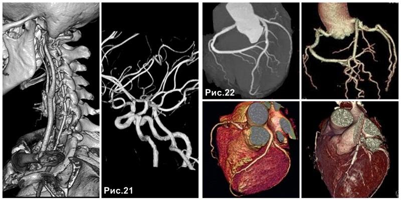 angiography_coronarography_CT