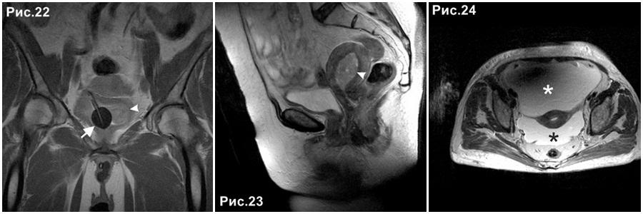 endometrial_carcinoma