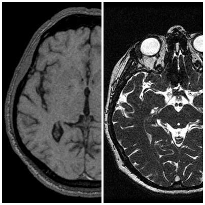 brain_MRI