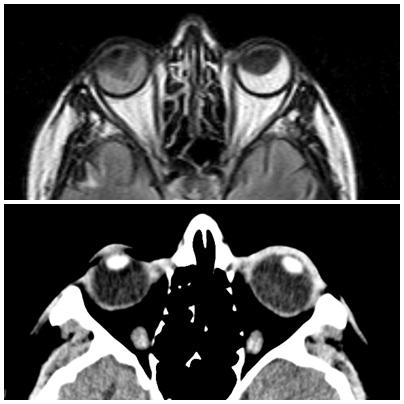 orbits_MRI