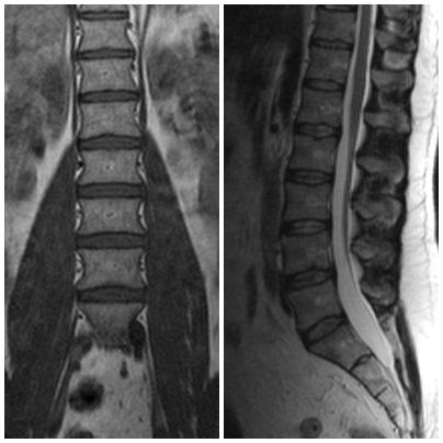 spine_MRI