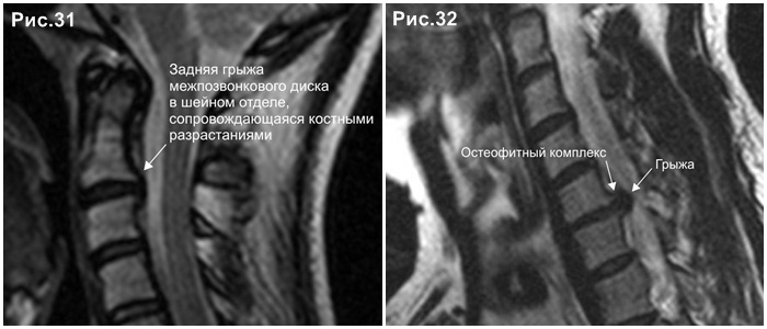 c-spine_hernia_disc