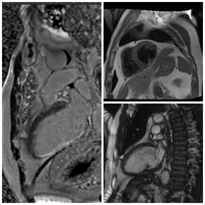 mediastinal_MRI