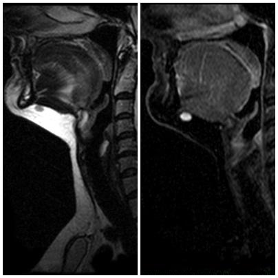 soft_tissue_MRI