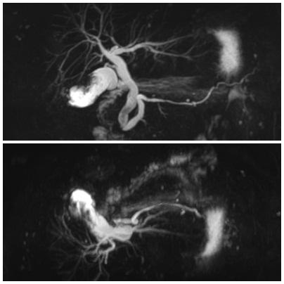cholangiopancr_atography_MRI
