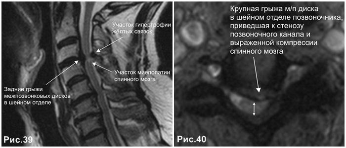 c-spine_stenosis_hernia