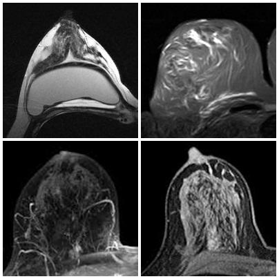 mammography_MRI