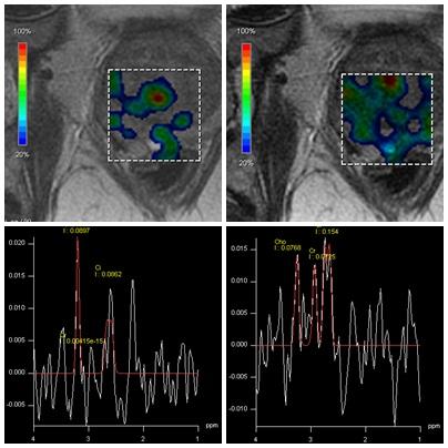 spectroscopy_MRI