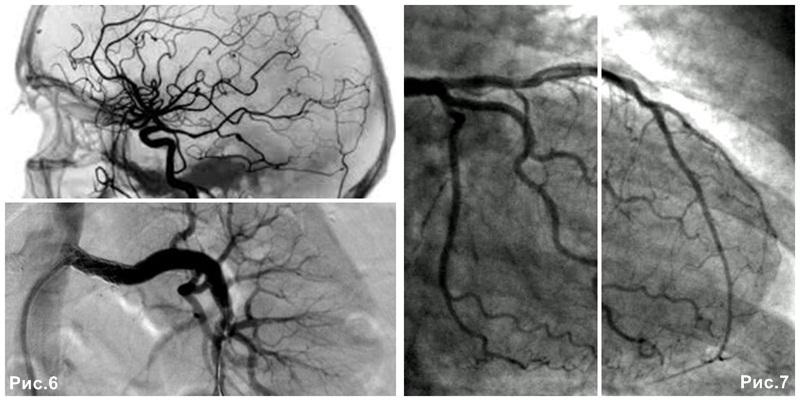 angiography_coronarography