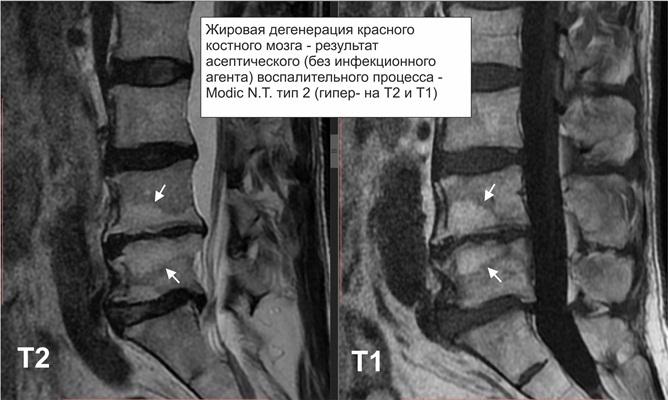 Жировая дистрофия костного мозга позвоночника лечение